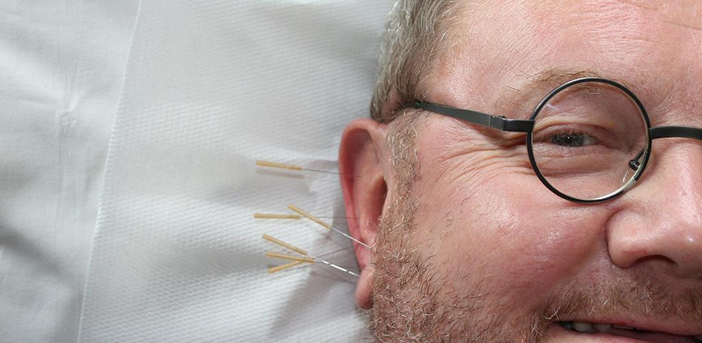Akupunktur är den ensilt vanligaste komplementära vårdformen i Sverige.